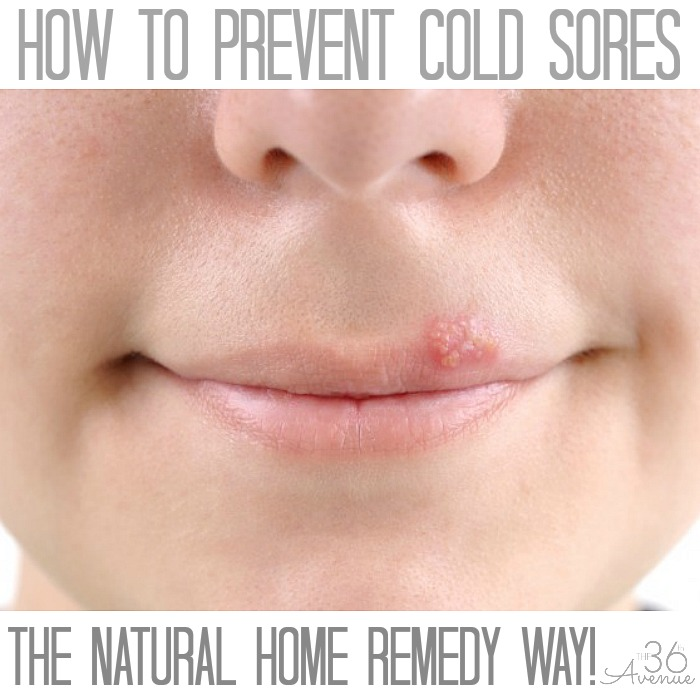 How to prevent COLD SORES at the36thavenue.com The easy NATURAL HOME REMEDY way.. You want to pin this!
